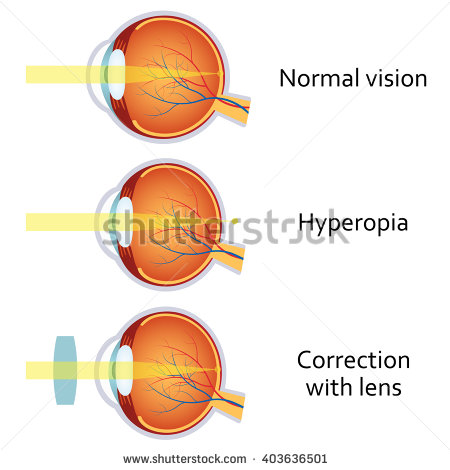 Long sightedness explanaton