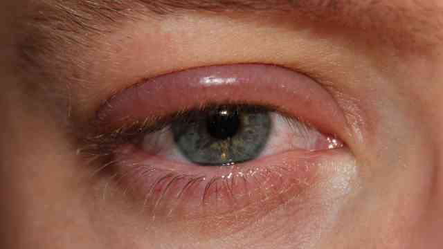 Askew Eyewear can advise you on the management and treatment of blepharitis
